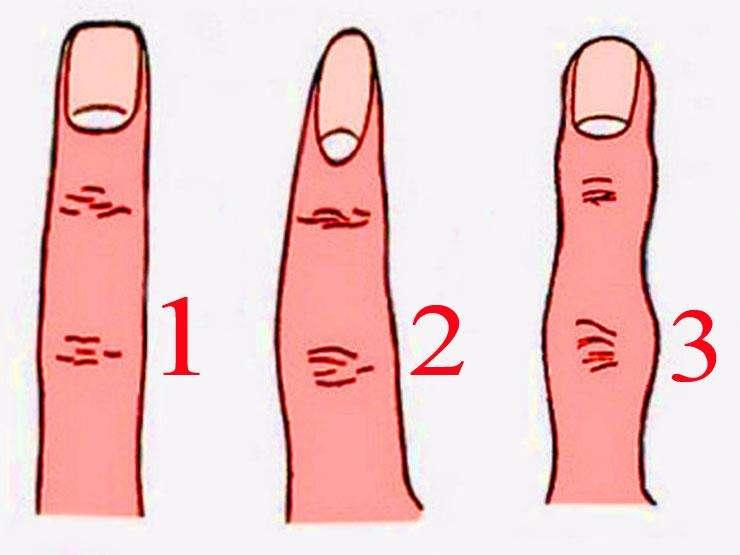 شكل اصابع اليد