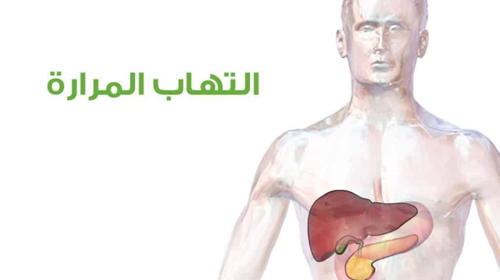 علاج التهاب المرارة بطرق مختلفة بالادوية والاعشاب الطبيعية